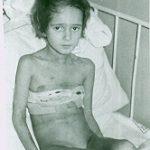 Pierwsze dziecko po operacji ubytku w przegrodzie międzykomorowej serca