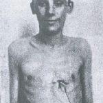 Bolesław Kozubowicz pacjent operowany przez Jana Borzymowskiego 28.lutego 1903 r. z powodu rozległej rany serca