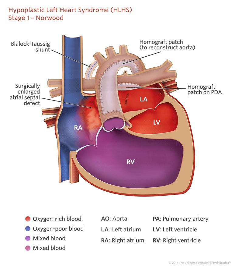 Zespół hipoplazji lewego serca - HLHS
