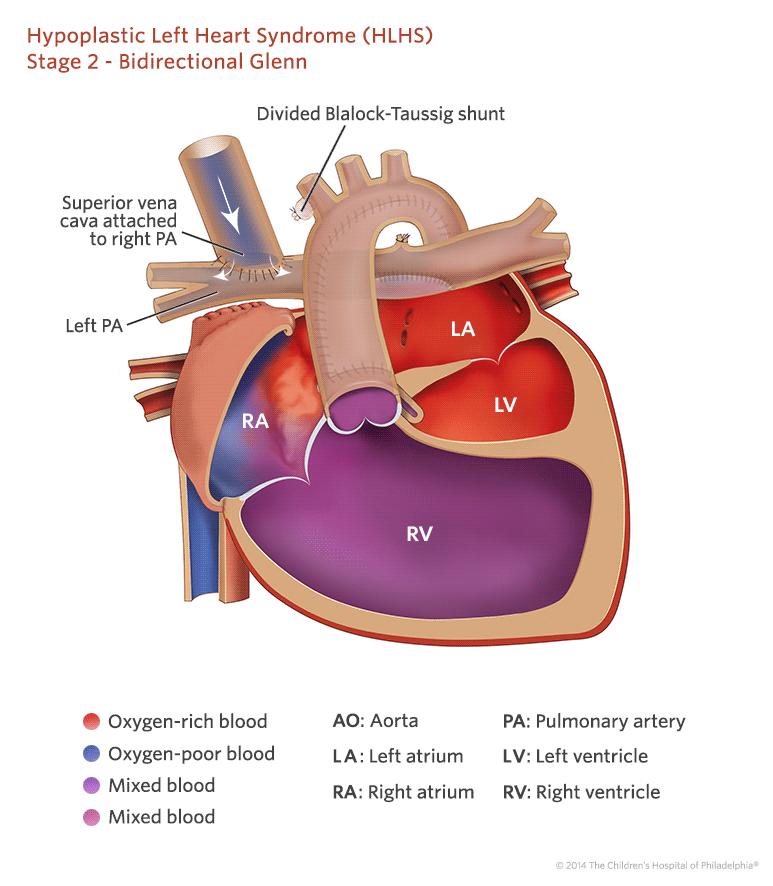 Zespół niedorozwoju lewego serca - HLHS
