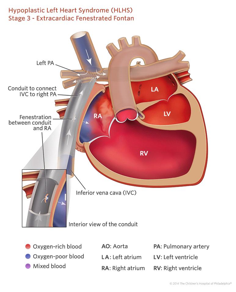 HLHS- hipoplazja lewego serca