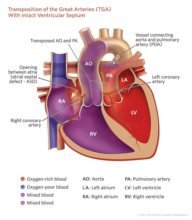 Przełożenie wielkich pni tętniczych - TGA