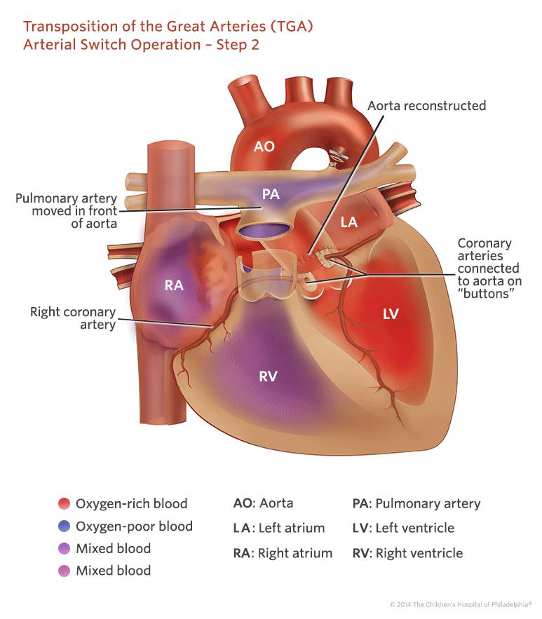 Przełożenie dużych tętnic- TGA
